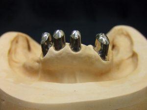 テレスコープ製作工程1 ハイブリッド・金属床2