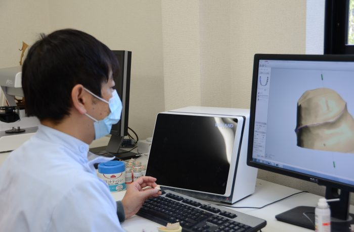 歯科技工士 作業の様子