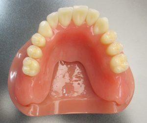 ペクトン(PEKK)補綴素材 歯科技工所ファインデンタル